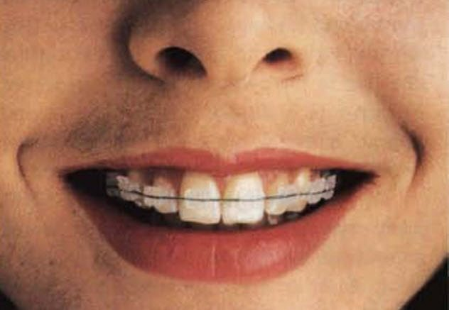3-invisible-braces